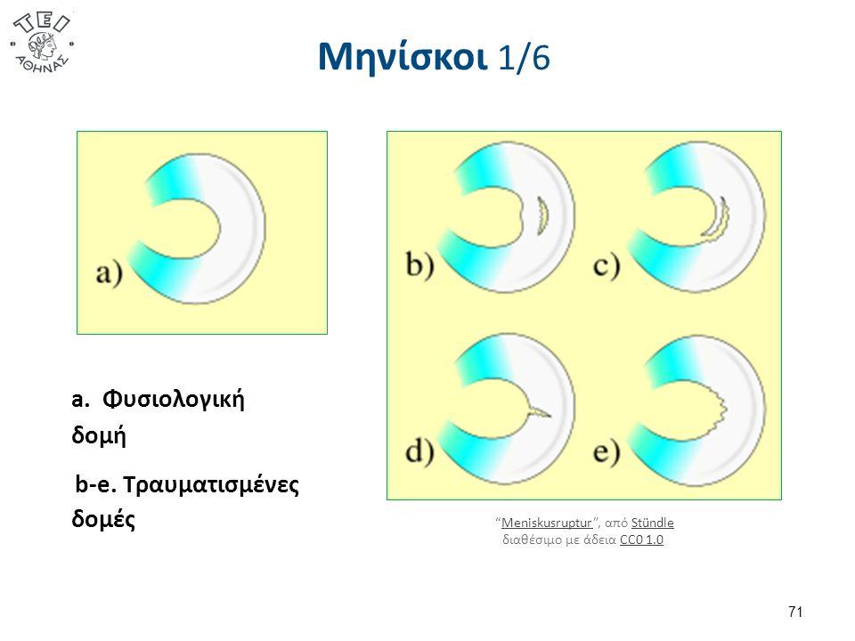 Μηνίσκοι 1/6 71 a. Φυσιολογική δομή b-e.