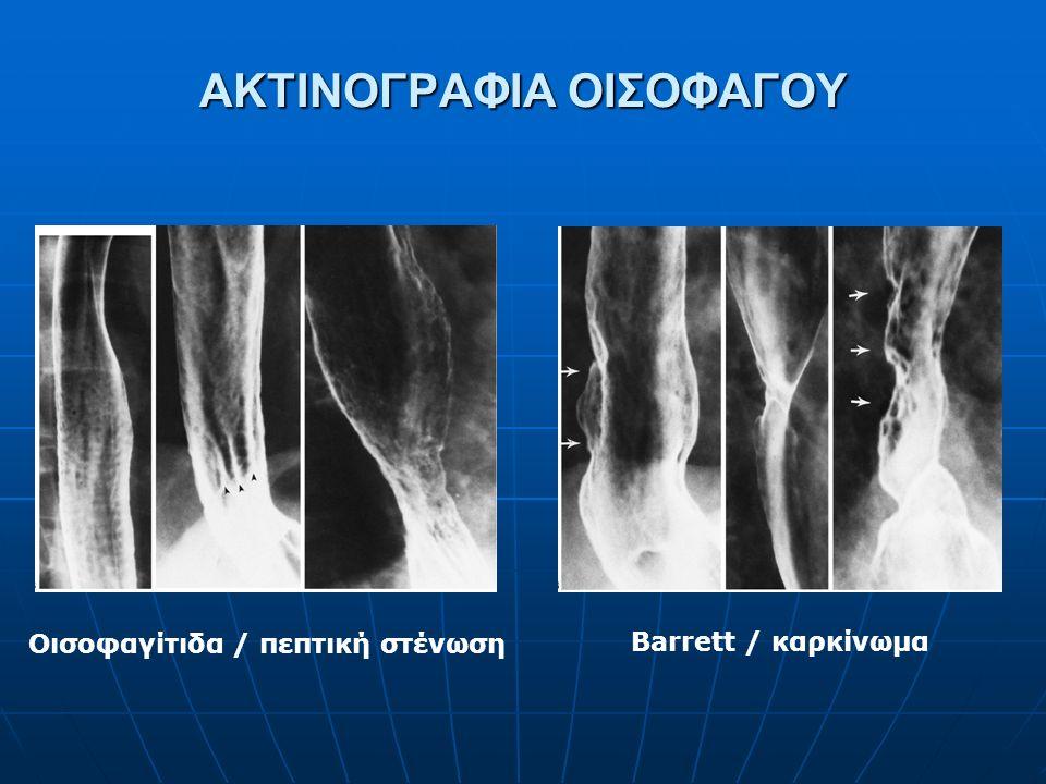ΑΚΤΙΝΟΓΡΑΦΙΑ ΟΙΣΟΦΑΓΟΥ Οισοφαγίτιδα / πεπτική στένωση Barrett / καρκίνωμα