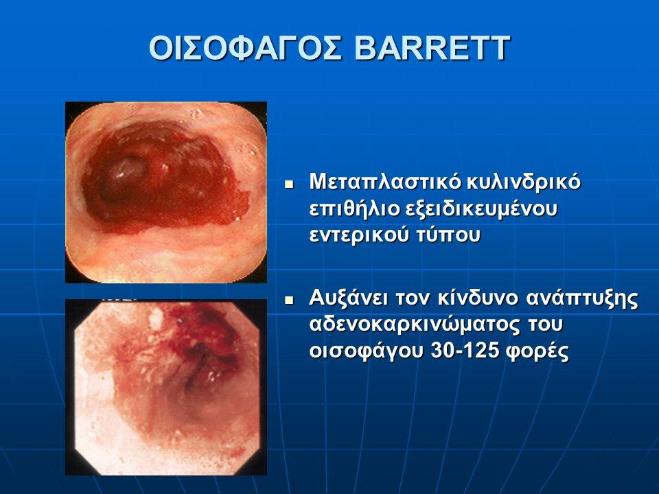 ΟΙΣΟΦΑΓΟΣ BARRETT Μεταπλαστικό κυλινδρικό επιθήλιο εξειδικευμένου εντερικού τύπου Μεταπλαστικό κυλινδρικό επιθήλιο εξειδικευμένου εντερικού τύπου Αυξάνει τον κίνδυνο ανάπτυξης αδενοκαρκινώματος του οισοφάγου 30-125 φορές Αυξάνει τον κίνδυνο ανάπτυξης αδενοκαρκινώματος του οισοφάγου 30-125 φορές