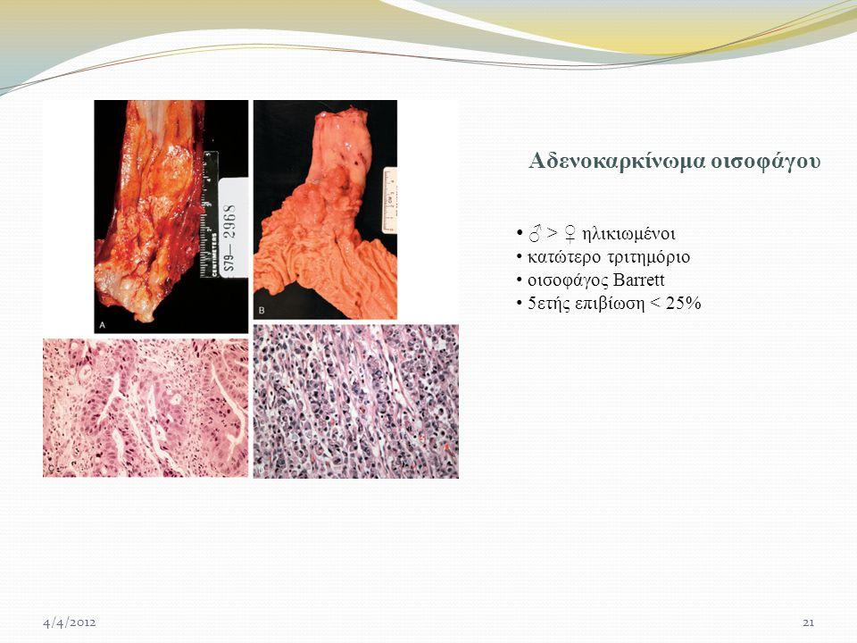 Αδενοκαρκίνωμα οισοφάγου ♂ > ♀ ηλικιωμένοι κατώτερο τριτημόριο οισοφάγος Barrett 5ετής επιβίωση < 25% 4/4/201221