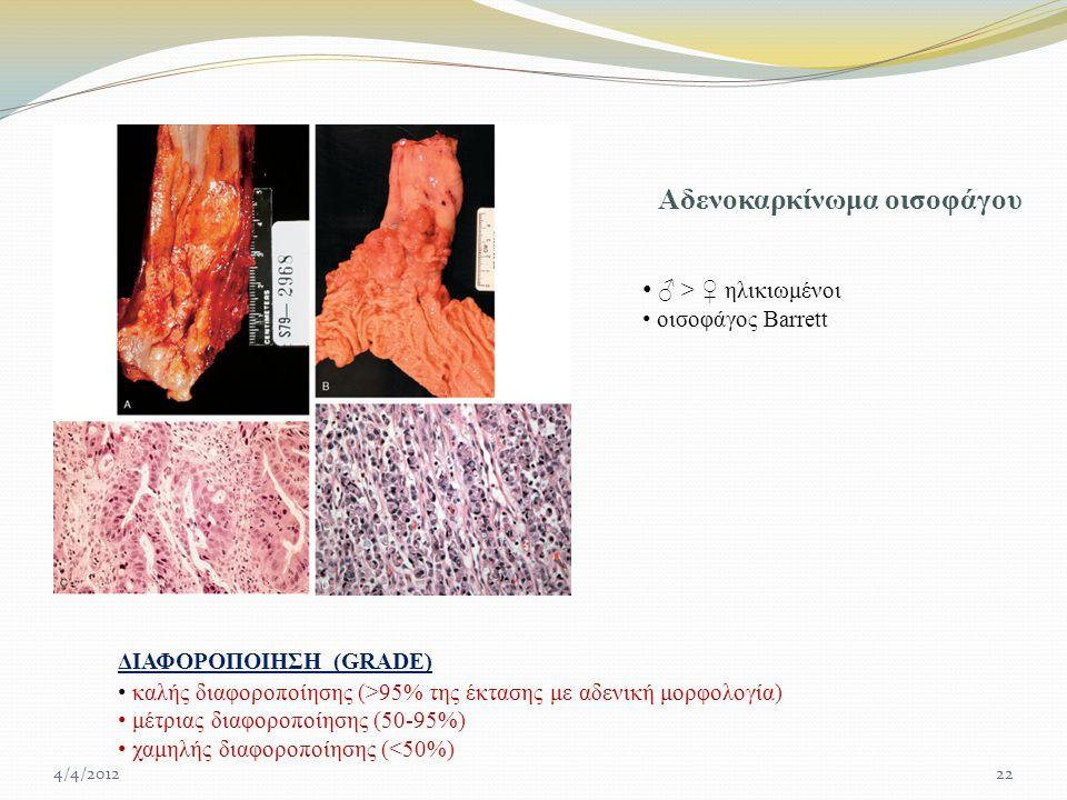 Αδενοκαρκίνωμα οισοφάγου ♂ > ♀ ηλικιωμένοι οισοφάγος Barrett καλής διαφοροποίησης (>95% της έκτασης με αδενική μορφολογία) μέτριας διαφοροποίησης (50-95%) χαμηλής διαφοροποίησης (<50%) ΔΙΑΦΟΡΟΠΟΙΗΣΗ (GRADE) 4/4/201222