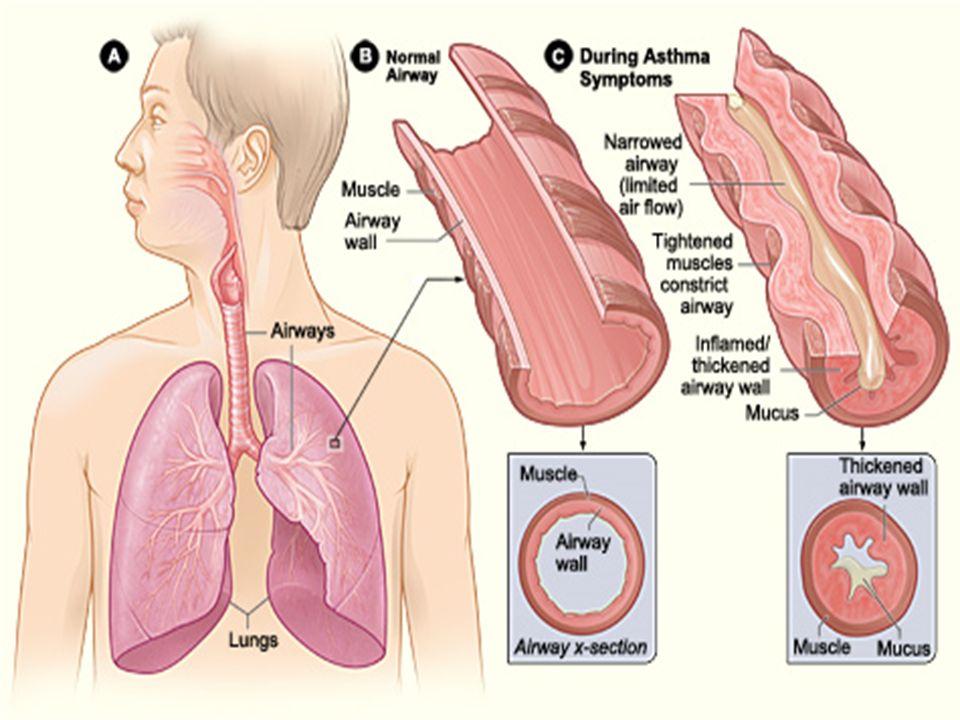 ΕΚΤΙΜΗΣΗ ΚΡΙΣΗΣ ΒΡΟΓΧΙΚΟΥ ΑΣΘΜΑΤΟΣ  Ανησυχητική κλινική εικόνα: Αναπνοές >25 / λεπτό, σφύξεις >110 / λεπτό, spO 2 <92%, έντονος βήχας/συριγμός Δυσκολία ομιλίας (άρθρωση ολόκληρης πρότασης χωρίς βαθιά ανάσα) Ασθενής ωχρός, κάθιδρος, με ολοένα πιο αδύναμες προσπάθειες αναπνοής  Αέρια αίματος: πτώση PaΟ 2, pH, αύξηση PaCO 2  Σπιρομέτρηση – ιδιαίτερα σημαντική η μέγιστη εκπνευστική ροή: Απαιτείται σύγκριση με τιμές προ της κρίσης (εκτίμηση επιδείνωσης, παρακολούθηση μεταβολών) <50% προβλεπόμενης: σοβαρό άσθμα - <35% προβλεπόμενης: άσθμα απειλητικό για τη ζωή Υποξαιμία, οξέωση, καρδιοαναπνευστική ανακοπή  Ακτινογραφία: υποψία πνευμοθώρακα