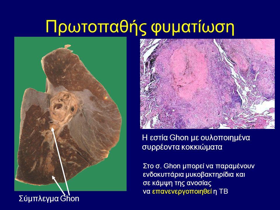 Πρωτοπαθής φυματίωση Σύμπλεγμα Ghon Η εστία Ghon με ουλοποιημένα συρρέοντα κοκκιώματα Στο σ.