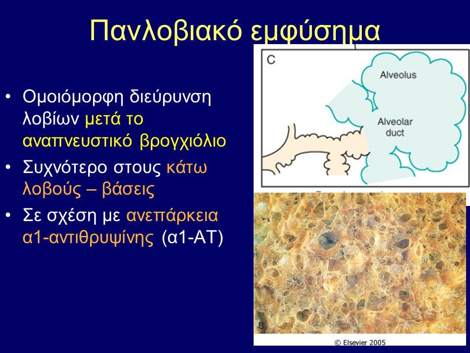 Πανλοβιακό εμφύσημα Ομοιόμορφη διεύρυνση λοβίων μετά το αναπνευστικό βρογχιόλιο Συχνότερο στους κάτω λοβούς – βάσεις Σε σχέση με ανεπάρκεια α1-αντιθρυψίνης (α1-ΑΤ)