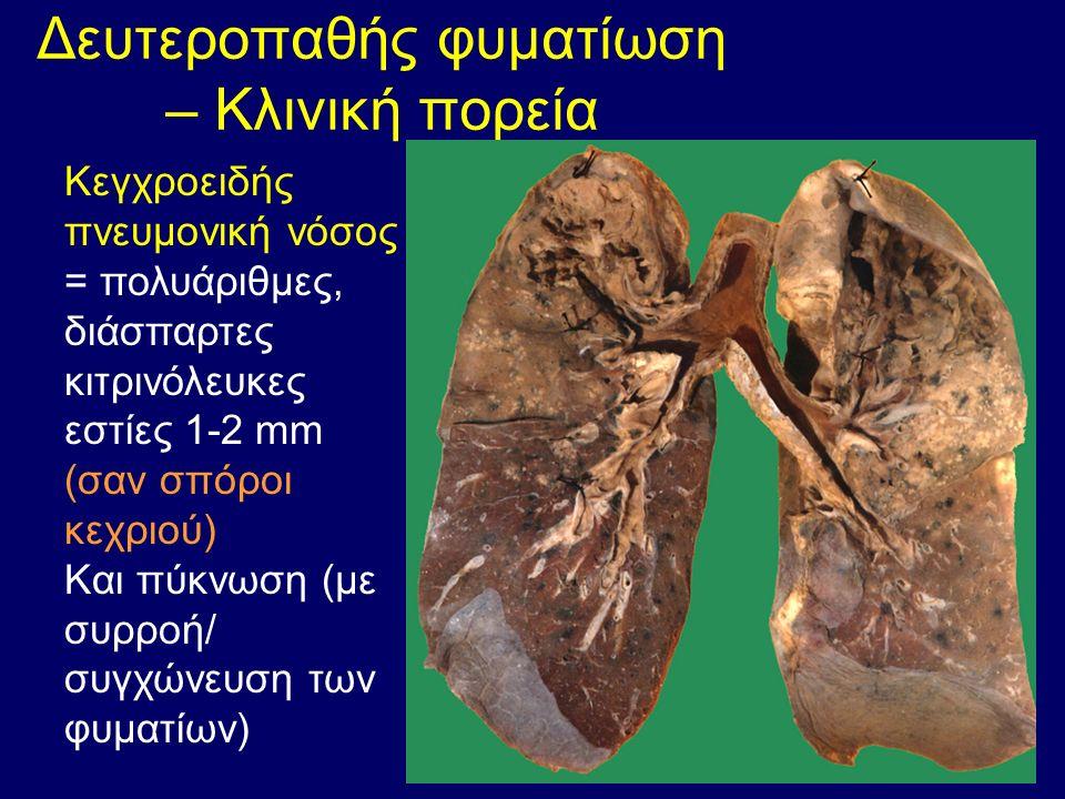 Δευτεροπαθής φυματίωση – Κλινική πορεία Κεγχροειδής πνευμονική νόσος = πολυάριθμες, διάσπαρτες κιτρινόλευκες εστίες 1-2 mm (σαν σπόροι κεχριού) Και πύκνωση (με συρροή/ συγχώνευση των φυματίων)