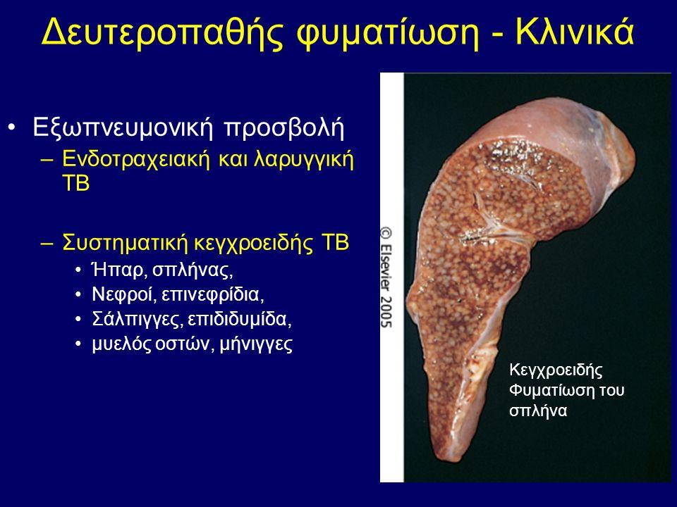 Δευτεροπαθής φυματίωση - Κλινικά Εξωπνευμονική προσβολή –Ενδοτραχειακή και λαρυγγική ΤΒ –Συστηματική κεγχροειδής ΤΒ Ήπαρ, σπλήνας, Νεφροί, επινεφρίδια, Σάλπιγγες, επιδιδυμίδα, μυελός οστών, μήνιγγες Κεγχροειδής Φυματίωση του σπλήνα