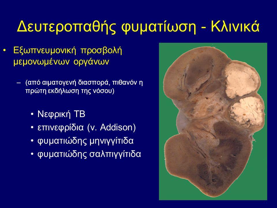 Δευτεροπαθής φυματίωση - Κλινικά Εξωπνευμονική προσβολή μεμονωμένων οργάνων –(από αιματογενή διασπορά, πιθανόν η πρώτη εκδήλωση της νόσου) Νεφρική ΤΒ επινεφρίδια (ν.
