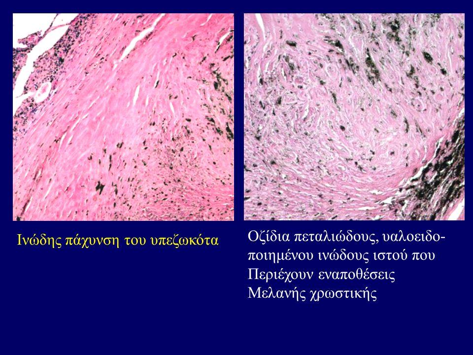 Ινώδης πάχυνση του υπεζωκότα Οζίδια πεταλιώδους, υαλοειδο- ποιημένου ινώδους ιστού που Περιέχουν εναποθέσεις Μελανής χρωστικής