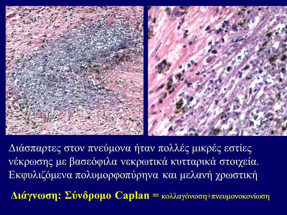 Διάγνωση: Σύνδρομο Caplan = κολλαγόνωση+πνευμονοκονίωση Διάσπαρτες στον πνεύμονα ήταν πολλές μικρές εστίες νέκρωσης με βασεόφιλα νεκρωτικά κυτταρικά στοιχεία.