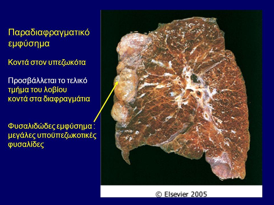Παραδιαφραγματικό εμφύσημα Κοντά στον υπεζωκότα Προσβάλλεται το τελικό τμήμα του λοβίου κοντά στα διαφραγμάτια Φυσαλιδώδες εμφύσημα : μεγάλες υποϋπεζωκοτικές φυσαλίδες