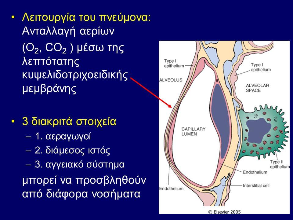 Τμήμα τοιχώματος βρογχιολίου με μερική καταστροφή επιθηλίου (1), έντονη φλεγμονώδη διήθηση (2), αγγειοδιαστολή και αγγειακή συμφόρηση (3) και πάχυνση βασικής μεμβράνης (4) (1) (2) (3) (4)