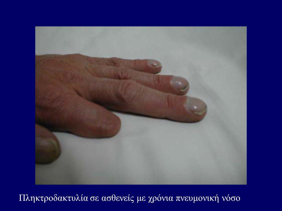 Πληκτροδακτυλία σε ασθενείς με χρόνια πνευμονική νόσο