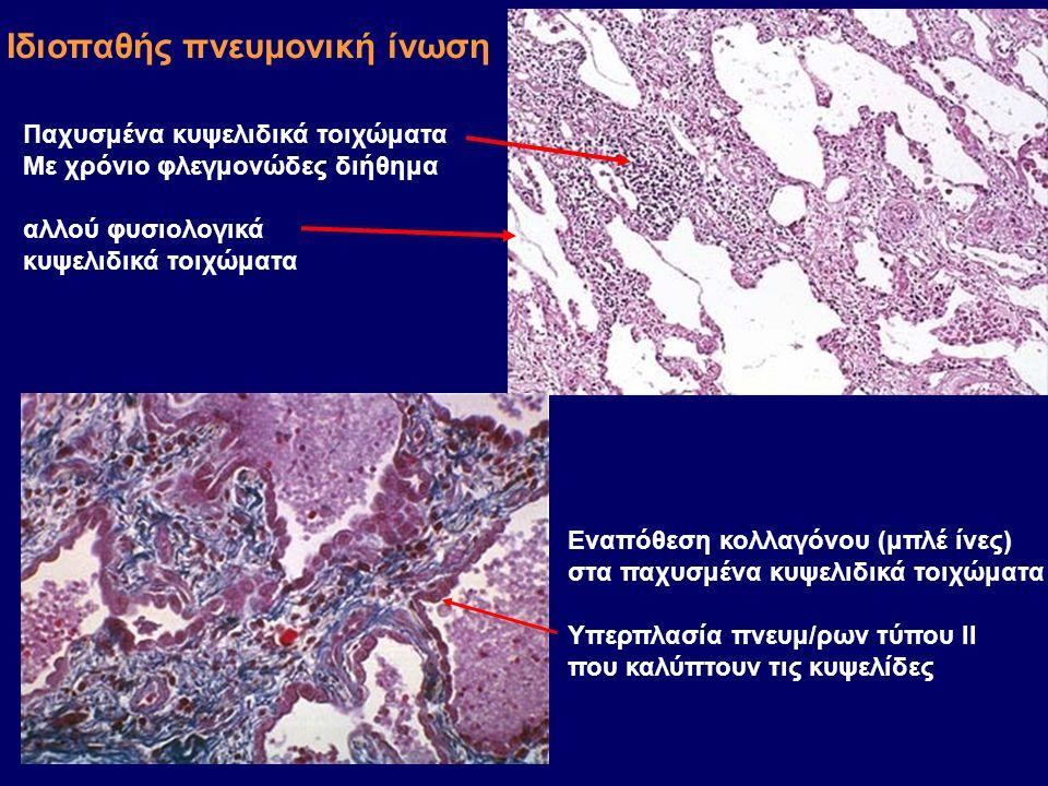 Παχυσμένα κυψελιδικά τοιχώματα Με χρόνιο φλεγμονώδες διήθημα αλλού φυσιολογικά κυψελιδικά τοιχώματα Εναπόθεση κολλαγόνου (μπλέ ίνες) στα παχυσμένα κυψελιδικά τοιχώματα Υπερπλασία πνευμ/ρων τύπου ΙΙ που καλύπτουν τις κυψελίδες Ιδιοπαθής πνευμονική ίνωση