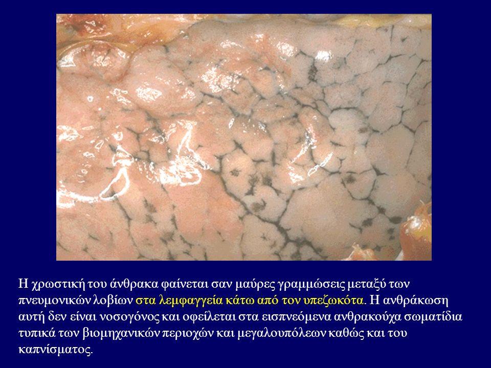 Η χρωστική του άνθρακα φαίνεται σαν μαύρες γραμμώσεις μεταξύ των πνευμονικών λοβίων στα λεμφαγγεία κάτω από τον υπεζωκότα.