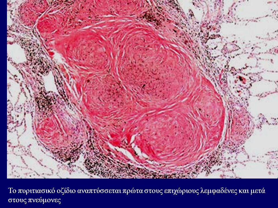 Το πυριτιασικό οζίδιο αναπτύσσεται πρώτα στους επιχώριους λεμφαδένες και μετά στους πνεύμονες