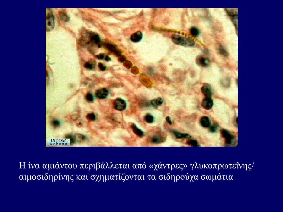 Η ίνα αμιάντου περιβάλλεται από «χάντρες» γλυκοπρωτεΐνης/ αιμοσιδηρίνης και σχηματίζονται τα σιδηρούχα σωμάτια