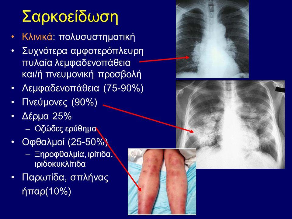 Σαρκοείδωση Κλινικά: πολυσυστηματική Συχνότερα αμφοτερόπλευρη πυλαία λεμφαδενοπάθεια και/ή πνευμονική προσβολή Λεμφαδενοπάθεια (75-90%) Πνεύμονες (90%) Δέρμα 25% –Οζώδες ερύθημα Οφθαλμοί (25-50%) –Ξηροφθαλμία, ιρίτιδα, ιριδοκυκλίτιδα Παρωτίδα, σπλήνας ήπαρ(10%)