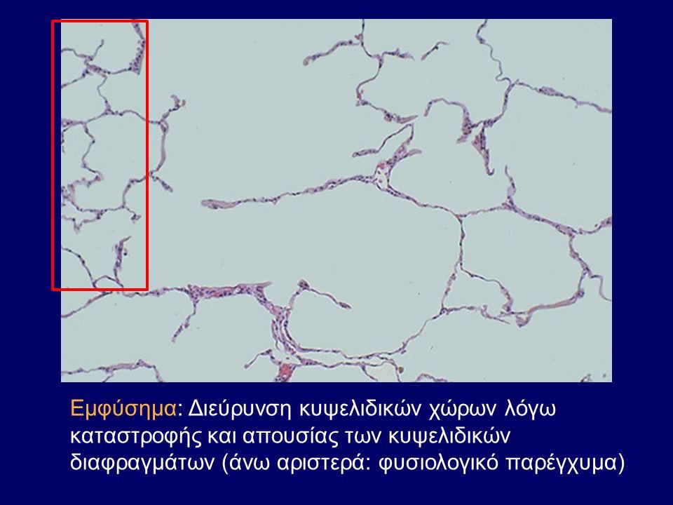 Εμφύσημα: Διεύρυνση κυψελιδικών χώρων λόγω καταστροφής και απουσίας των κυψελιδικών διαφραγμάτων (άνω αριστερά: φυσιολογικό παρέγχυμα)