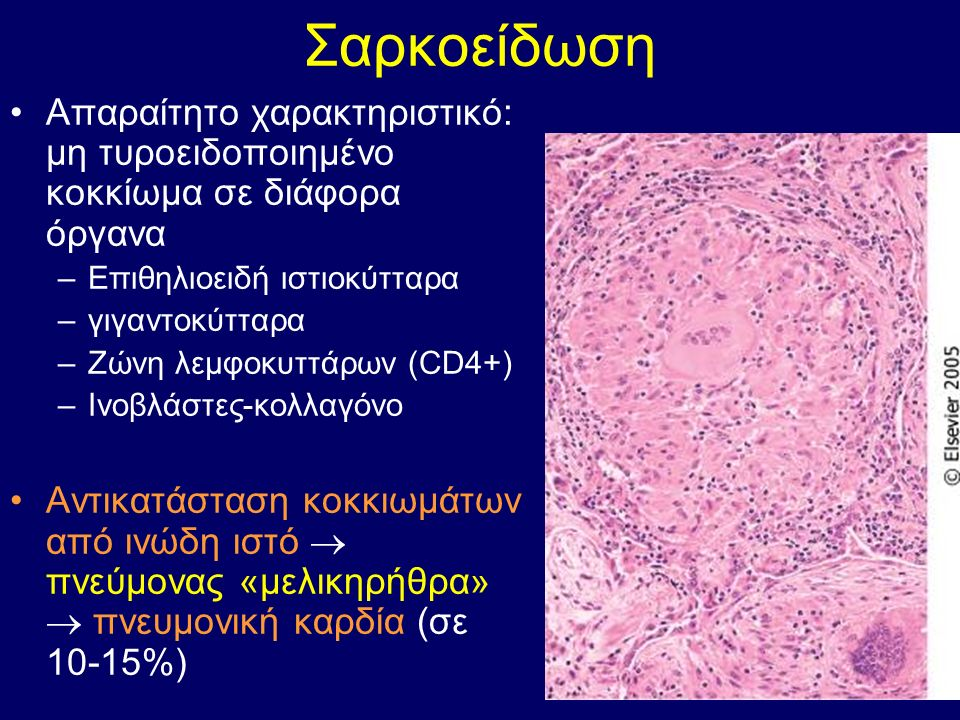 Σαρκοείδωση Απαραίτητο χαρακτηριστικό: μη τυροειδοποιημένο κοκκίωμα σε διάφορα όργανα –Επιθηλιοειδή ιστιοκύτταρα –γιγαντοκύτταρα –Ζώνη λεμφοκυττάρων (CD4+) –Ινοβλάστες-κολλαγόνο Αντικατάσταση κοκκιωμάτων από ινώδη ιστό  πνεύμονας «μελικηρήθρα»  πνευμονική καρδία (σε 10-15%)