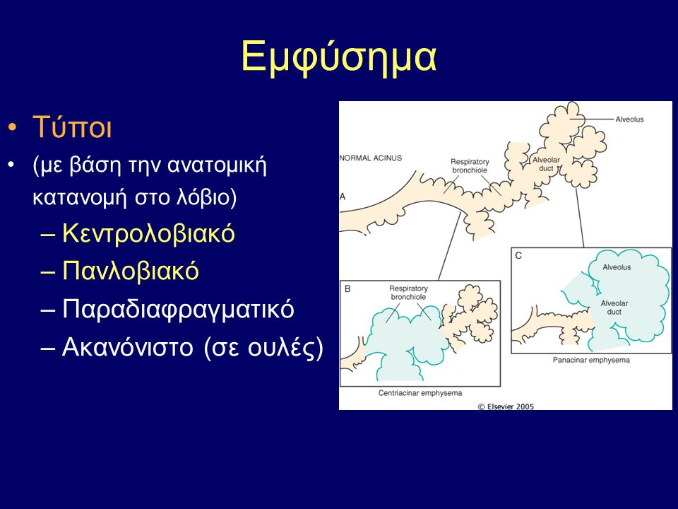 Οξεία πνευμονία της κοινότητας - επιπλοκές 1.Πνευμονικό απόστημα 2.Εμπύημα (πυώδης υπεζωκοτική συλλογή) 3.Πνευμονική ίνωση 4.Μικροβιαιμία  μηνιγγίτιδα, αρθρίτιδα, λοιμώδη ενδοκαρδίτιδα