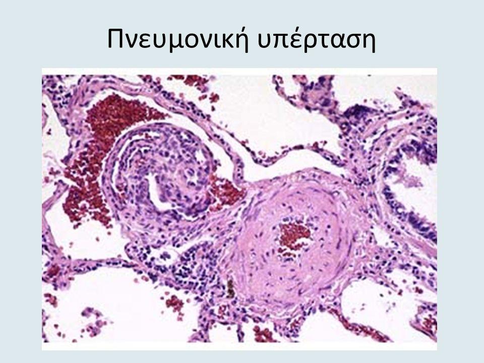 Πνευμονική υπέρταση