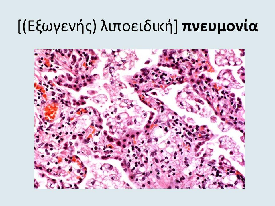 [(Eξωγενής) λιποειδική] πνευμονία