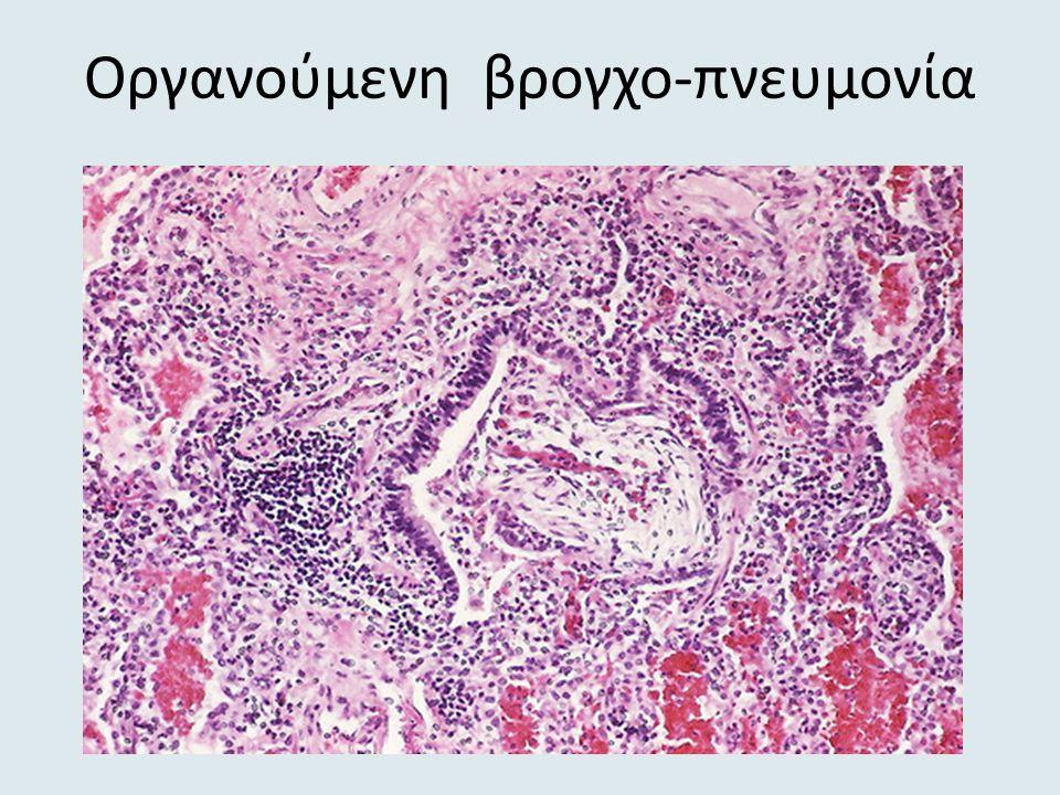 Oργανούμενη βρογχο-πνευμονία