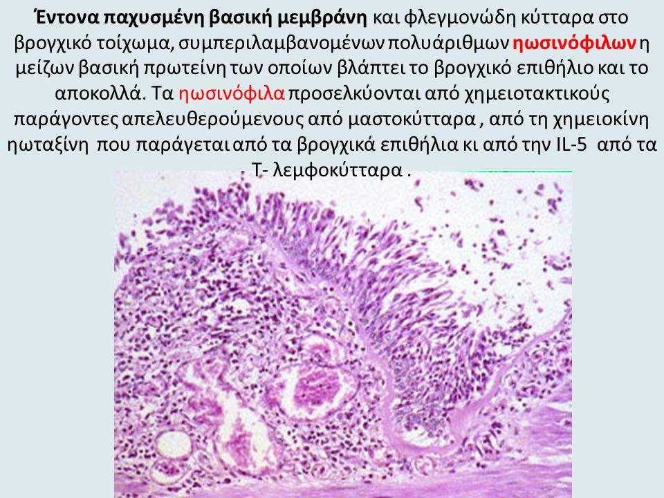 Έντονα παχυσμένη βασική μεμβράνη και φλεγμονώδη κύτταρα στο βρογχικό τοίχωμα, συμπεριλαμβανομένων πολυάριθμων ηωσινόφιλων η μείζων βασική πρωτείνη των οποίων βλάπτει το βρογχικό επιθήλιο και το αποκολλά.