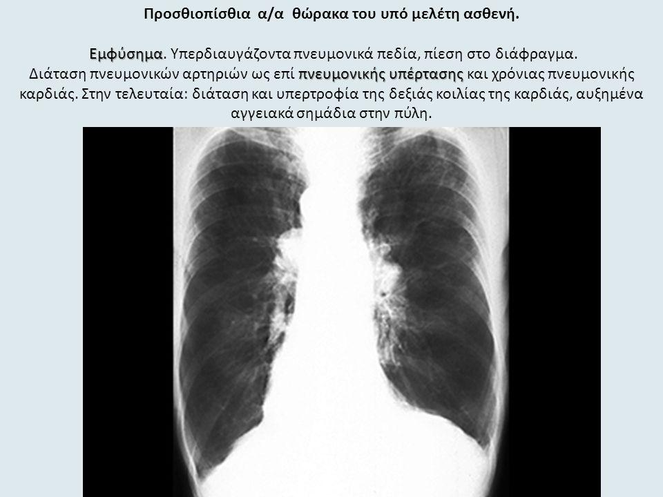 Προσθιοπίσθια α/α θώρακα του υπό μελέτη ασθενή. Εμφύσημα πνευμονικής υπέρτασης Εμφύσημα.