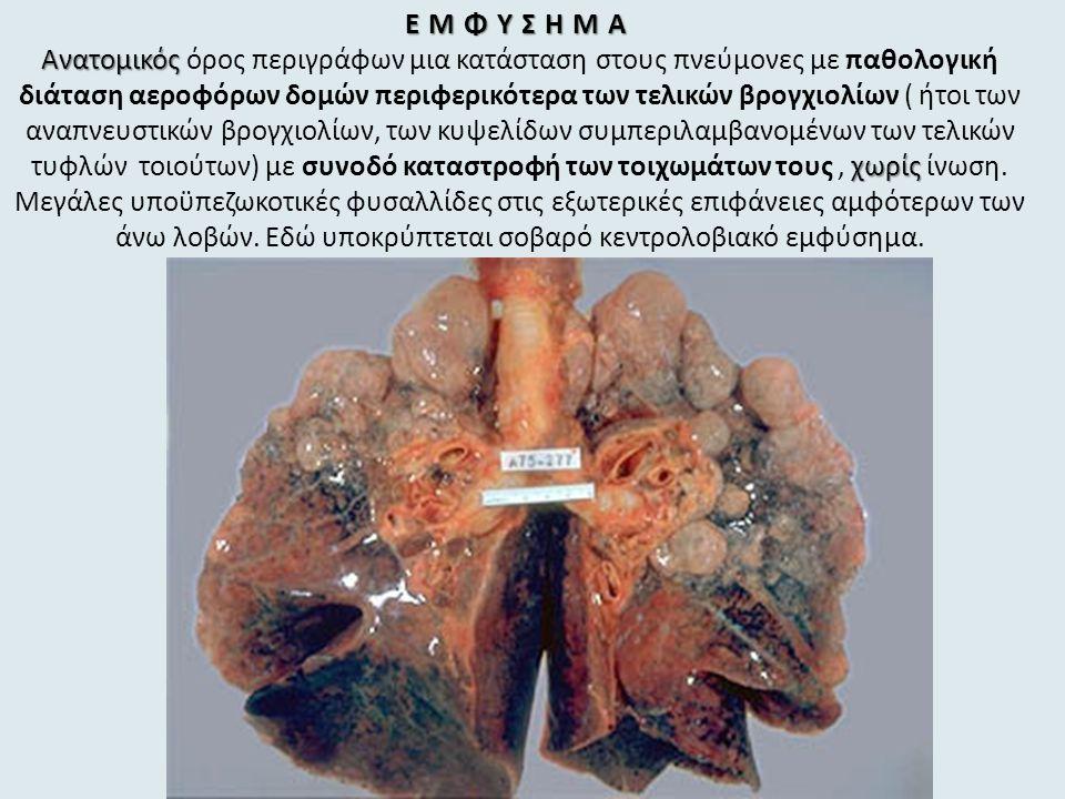 ΕΜΦΥΣΗΜΑ Ανατομικός χωρίς ΕΜΦΥΣΗΜΑ Ανατομικός όρος περιγράφων μια κατάσταση στους πνεύμονες με παθολογική διάταση αεροφόρων δομών περιφερικότερα των τελικών βρογχιολίων ( ήτοι των αναπνευστικών βρογχιολίων, των κυψελίδων συμπεριλαμβανομένων των τελικών τυφλών τοιούτων) με συνοδό καταστροφή των τοιχωμάτων τους, χωρίς ίνωση.