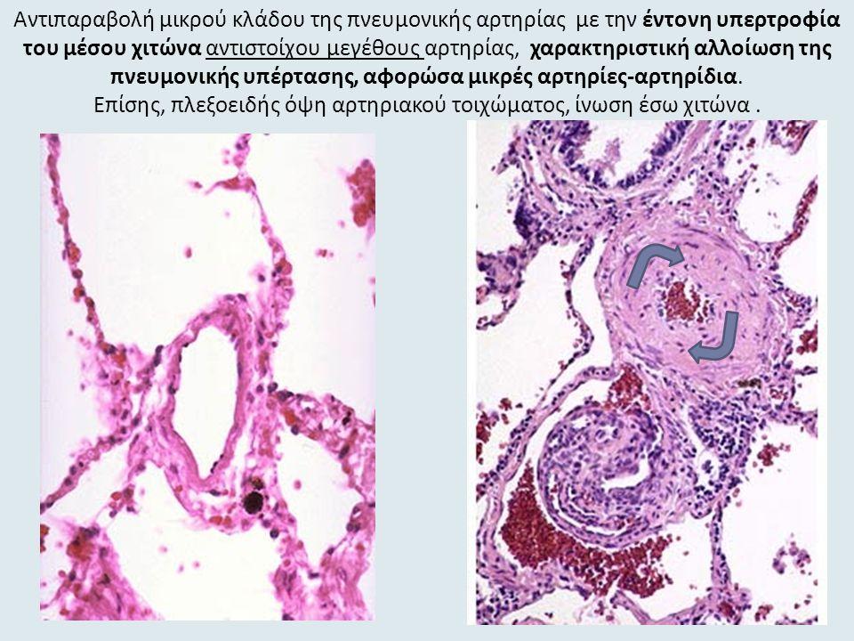 Αντιπαραβολή μικρού κλάδου της πνευμονικής αρτηρίας με την έντονη υπερτροφία του μέσου χιτώνα αντιστοίχου μεγέθους αρτηρίας, χαρακτηριστική αλλοίωση της πνευμονικής υπέρτασης, αφορώσα μικρές αρτηρίες-αρτηρίδια.