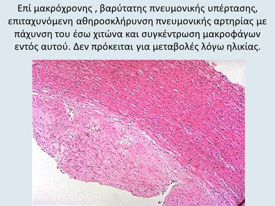Επί μακρόχρονης, βαρύτατης πνευμονικής υπέρτασης, επιταχυνόμενη αθηροσκλήρυνση πνευμονικής αρτηρίας με πάχυνση του έσω χιτώνα και συγκέντρωση μακροφάγων εντός αυτού.