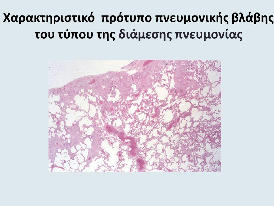 Χαρακτηριστικό πρότυπο πνευμονικής βλάβης του τύπου της διάμεσης πνευμονίας
