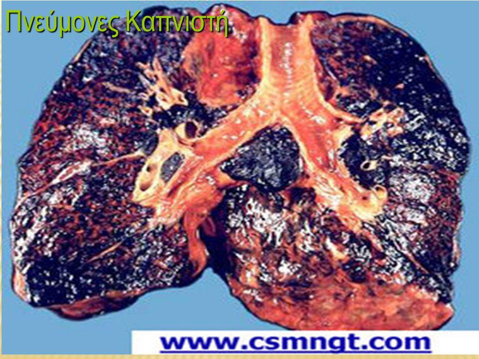 Γιατί το κάπνισμα βλάπτει o Το κάπνισμα αποτελεί τον κυριότερο αιτιολογικό παράγοντα της χρόνιας βρογχίτιδας και του πνευμονικού εμφυσήματος.