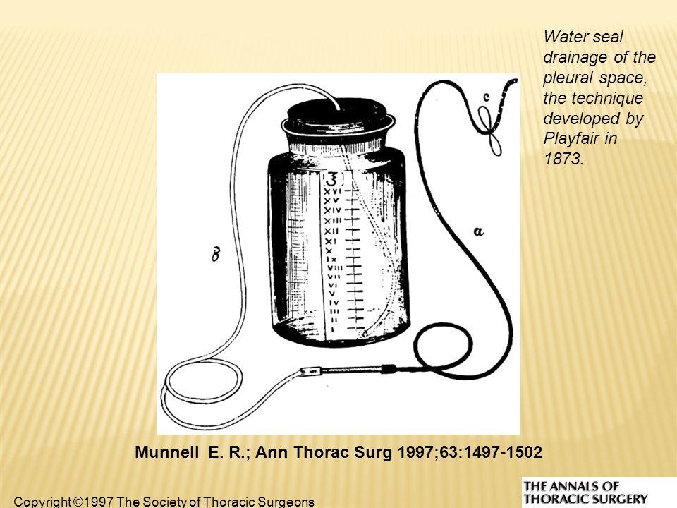 ΑΡΧΕΣ BULLAU  Μια στήλη σε ήπια αναρρόφηση, ώστε ο αέρας να βγει έξω  Στήλη H2O για αφαίρεση αέρα  Στο κενό για συλλογή υγρού πχ αίμα Θέλουμε διαφορά πίεσης στην υπεζωκοτική κοιλότητα Να βγάλουμε αέρα που έχει εγκλωβιστεί στην υπεζωκοτική κοιλότητα Δημιουργείται διαφορά πίεσης και βγαίνει ο αέρας από τη στήλη H2O Όταν τοποθετείται το BULLAU, ακούς ήχο εκτόνωσης, γιατί ο αέρας που έχει εγκλωβιστεί βγαίνει με πίεση έξω
