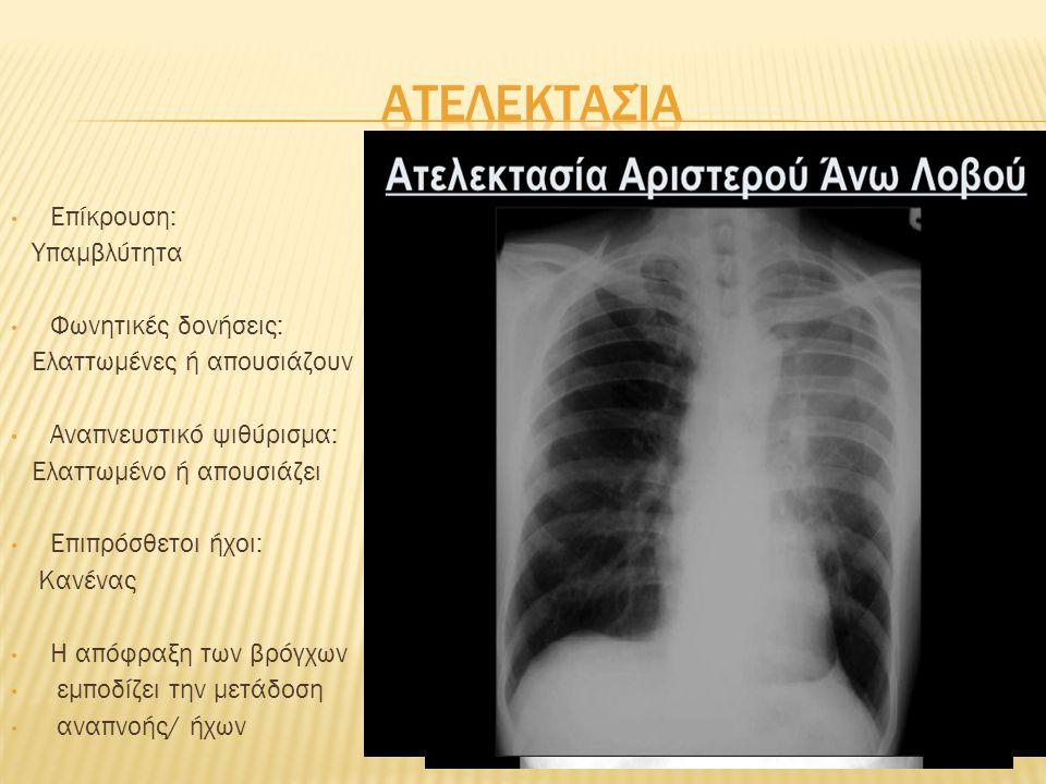 Επίκρουση: Υπερσαφής πνευμονικός Φωνητικές δονήσεις: Ελαττωμένες ή απουσιάζουν Αναπνευστικό ψιθύρισμα: Ελαττωμένο ή απών Επιπρόσθετοι ήχοι: Κανένας Η κοιλότητα του υπεζωκότα είναι γεμάτη αέρα