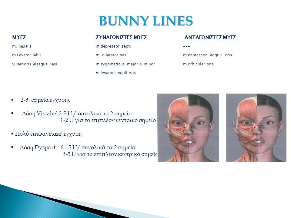 ΜΥΕΣΣΥΝΑΓΩΝΙΣΤΕΣ ΜΥΕΣ ΑΝΤΑΓΩΝΙΣΤΕΣ ΜΥΕΣ m. nasalism.depressor septi--- m.Levator labiim.