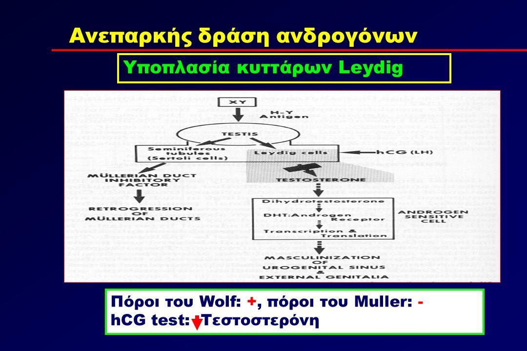 Ανεπαρκής δράση ανδρογόνων Υποπλασία κυττάρων Leydig Πόροι του Wolf: +, πόροι του Muller: - hCG test: Τεστοστερόνη