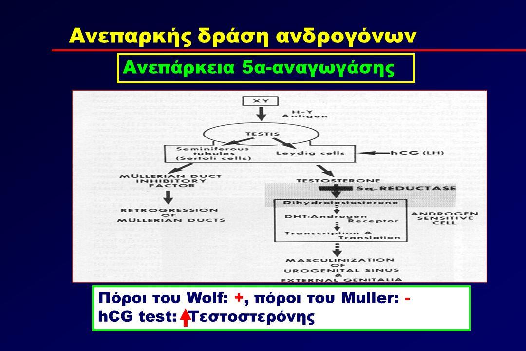 Ανεπαρκής δράση ανδρογόνων Ανεπάρκεια 5α-αναγωγάσης Πόροι του Wolf: +, πόροι του Muller: - hCG test: Τεστοστερόνης