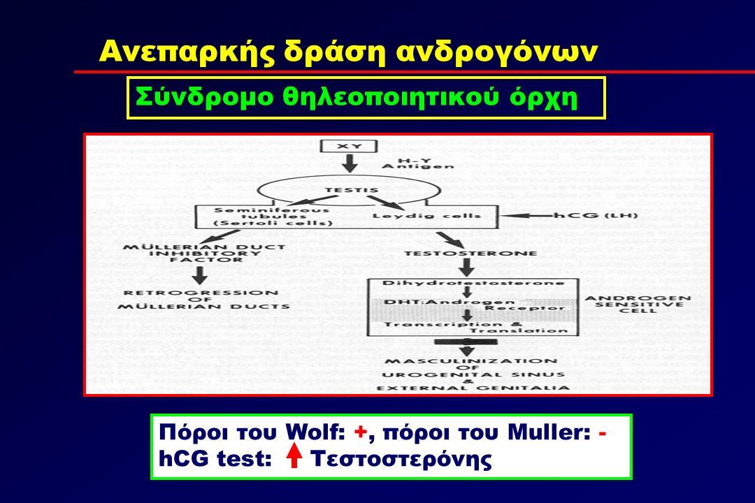 Ανεπαρκής δράση ανδρογόνων Σύνδρομο θηλεοποιητικού όρχη Πόροι του Wolf: +, πόροι του Muller: - hCG test: Τεστοστερόνης