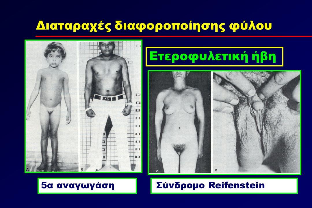 Διαταραχές διαφοροποίησης φύλου Ετεροφυλετική ήβη Σύνδρομο Reifenstein5α αναγωγάση