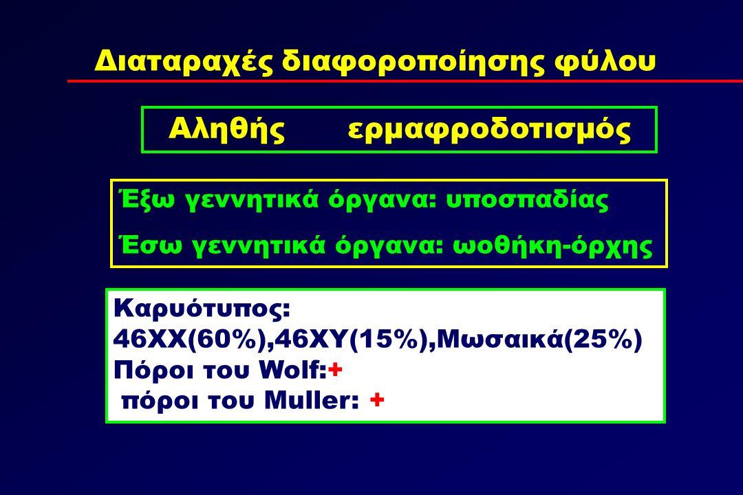 Διαταραχές διαφοροποίησης φύλου Αληθής ερμαφροδοτισμός Καρυότυπος: 46ΧΧ(60%),46ΧΥ(15%),Μωσαικά(25%) Πόροι του Wolf:+ πόροι του Muller: + Έξω γεννητικά όργανα: υποσπαδίας Έσω γεννητικά όργανα: ωοθήκη-όρχης