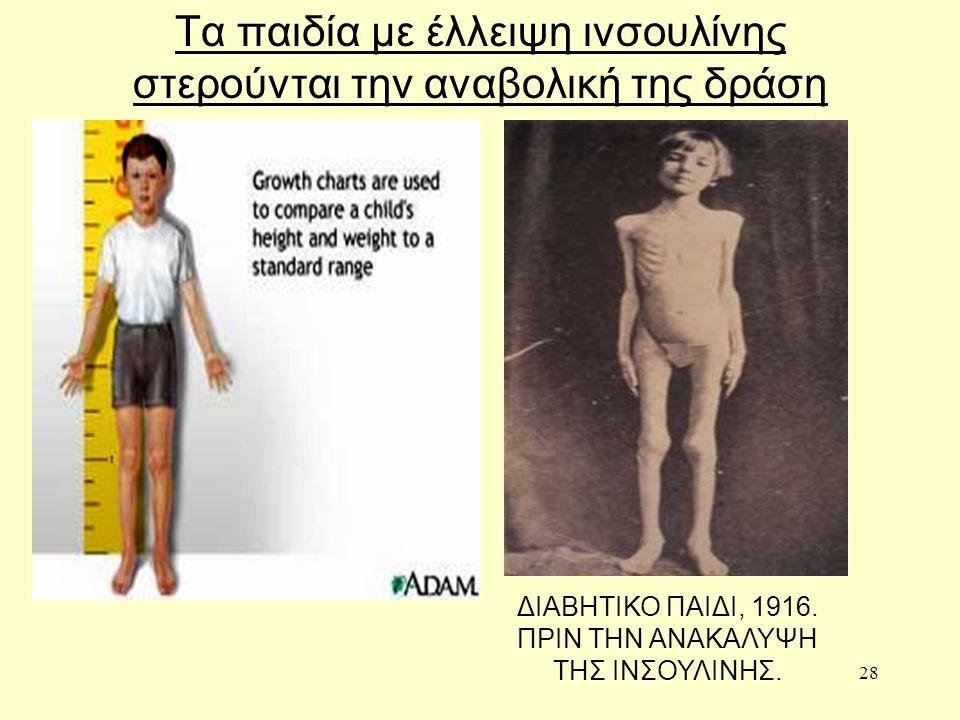 28 Τα παιδία με έλλειψη ινσουλίνης στερούνται την αναβολική της δράση ΔΙΑΒΗΤΙΚΟ ΠΑΙΔΙ, 1916.