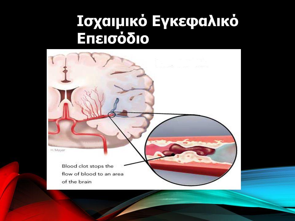 Ισχαιμικό Εγκεφαλικό Επεισόδιο