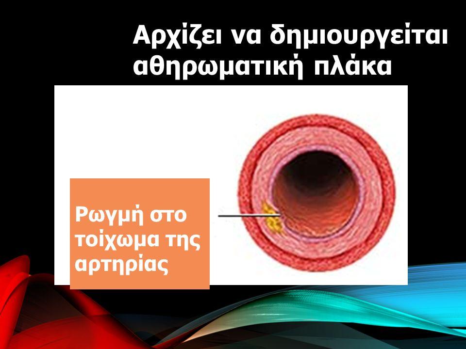 Αρχίζει να δημιουργείται αθηρωματική πλάκα Tear in Artery Wall Ρωγμή στο τοίχωμα της αρτηρίας