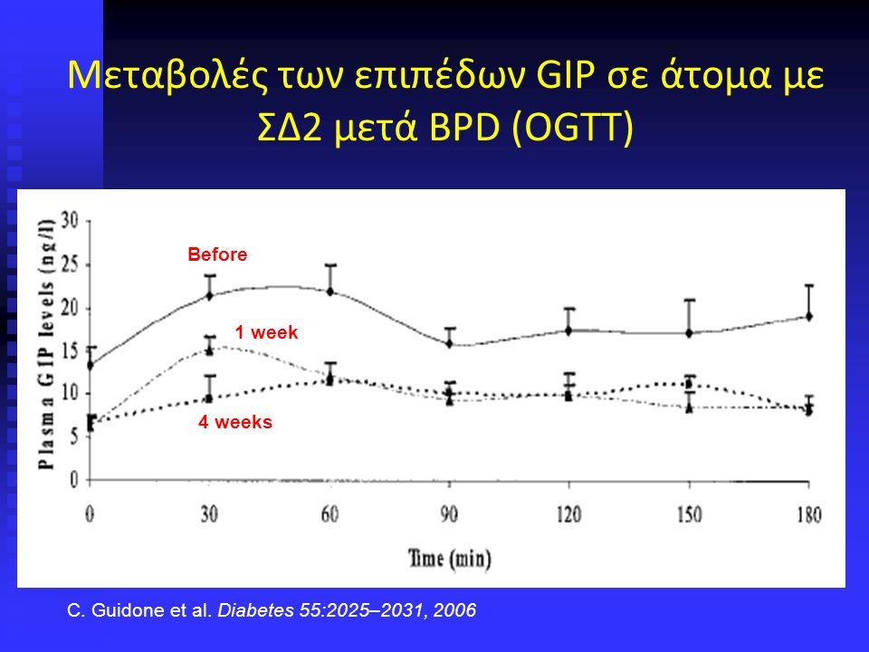Μεταβολές των επιπέδων GIP σε άτομα με ΣΔ2 μετά BPD (OGTT) 4 weeks 1 week Before C.
