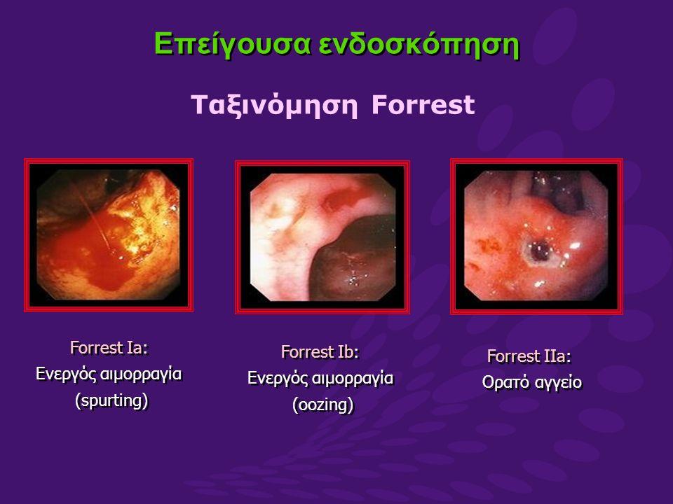 Επείγουσα ενδοσκόπηση Ταξινόμηση Forrest Forrest Ia: Ενεργός αιμορραγία (spurting) Forrest Ia: Ενεργός αιμορραγία (spurting) Forrest Ib: Ενεργός αιμορραγία (oozing) Forrest Ib: Ενεργός αιμορραγία (oozing) Forrest IIa: Ορατό αγγείο Forrest IIa: Ορατό αγγείο
