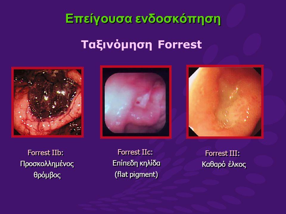 Forrest IIb: Προσκολλημένος θρόμβος Forrest IIb: Προσκολλημένος θρόμβος Forrest IIc: Επίπεδη κηλίδα (flat pigment) Forrest IIc: Επίπεδη κηλίδα (flat pigment) Forrest III: Καθαρό έλκος Forrest III: Καθαρό έλκος Επείγουσα ενδοσκόπηση Ταξινόμηση Forrest