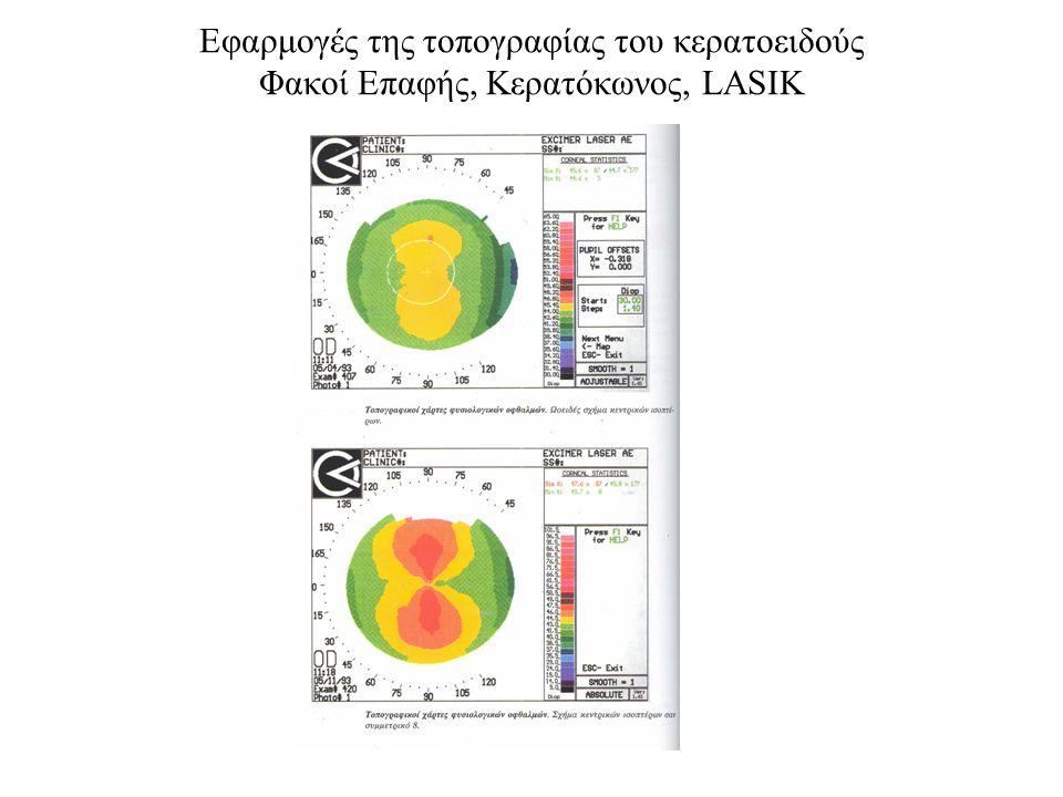 Εφαρμογές της τοπογραφίας του κερατοειδούς Φακοί Επαφής, Κερατόκωνος, LASIK