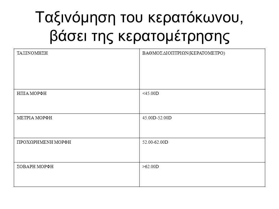 Ταξινόμηση του κερατόκωνου, βάσει της κερατομέτρησης ΤΑΞΙΝΟΜΗΣΗΒΑΘΜΟΣ ΔΙΟΠΤPΙΩΝ(ΚΕΡΑΤΟΜΕΤΡΟ) ΗΠΙΑ ΜΟΡΦΗ<45.00D ΜΕΤΡΙΑ ΜΟΡΦΗ45.00D-52.00D ΠΡΟΧΩΡΗΜΕΝΗ ΜΟΡΦΗ52.00-62.00D ΣΟΒΑΡΗ ΜΟΡΦΗ>62.00D